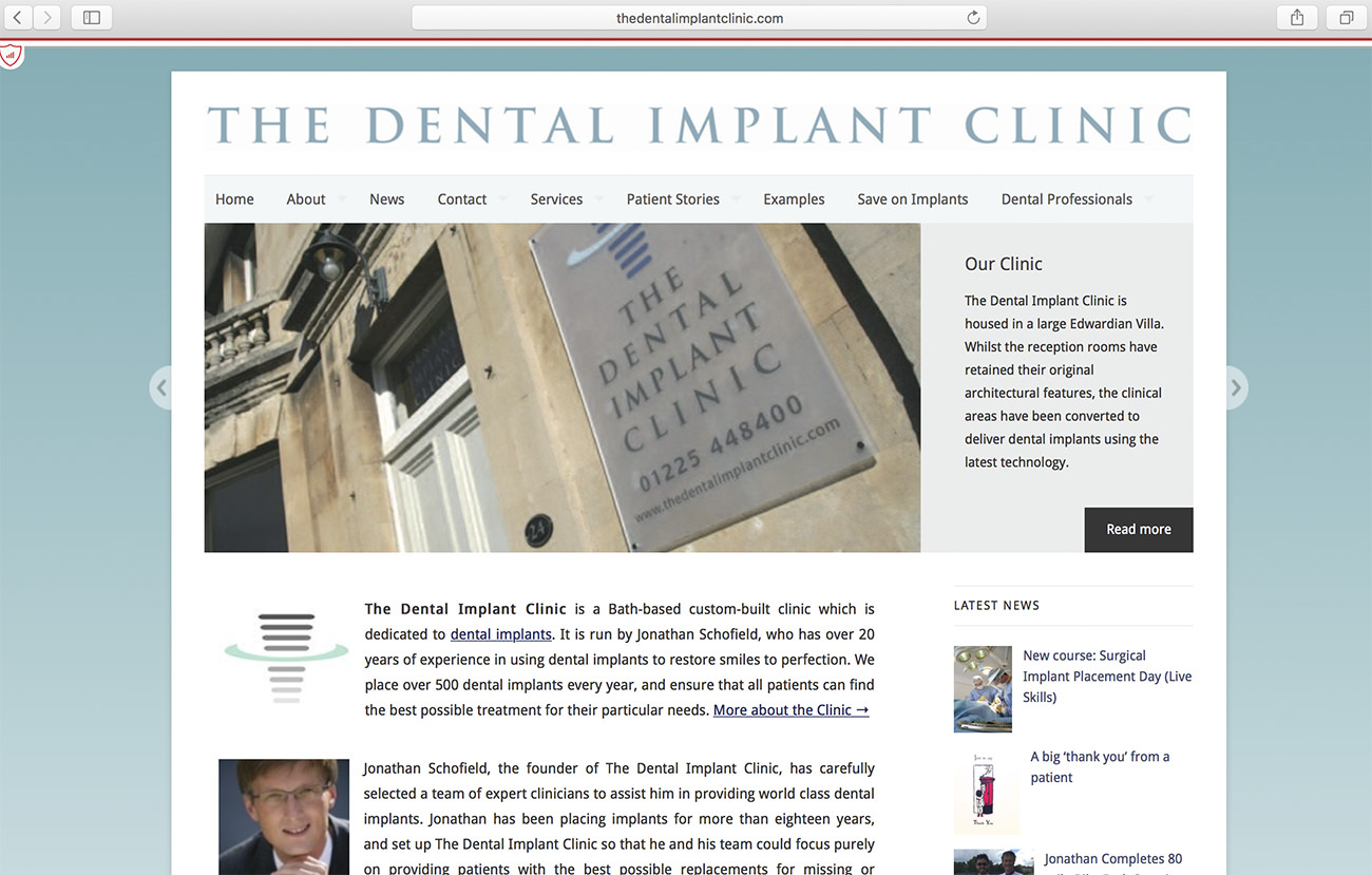 Dental Implant Clinic website interface - Marketing for dental clinics
